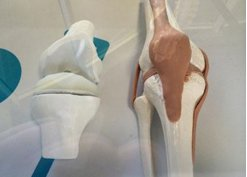 医生借助3D打印为84岁老人翻修膝关节