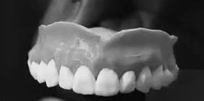 3D打印智能假牙,可自动清洁除菌