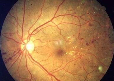 超薄石墨烯能制造人工视网膜 或将让眼疾患者重见光明