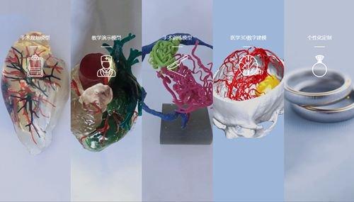 3D生物打印或精准构建复杂空腔组织