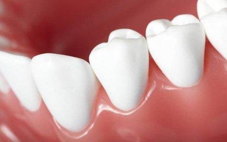 """新知:用""""面粉""""修复牙齿"""