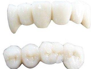 中科院金属所研发出新型仿生复合义齿材料
