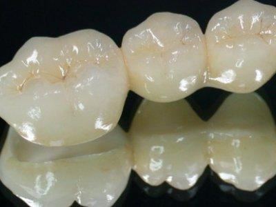 烧结对氧化锆陶瓷性能的影响