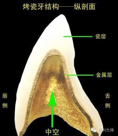 烤瓷牙结构图