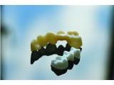 """3D打印""""牵手""""陶瓷材料   一颗假牙打出来"""